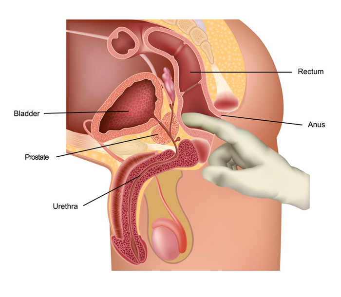 Prostate and sexuality an overview